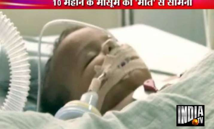 10 month old battling for life after falling in water bucket