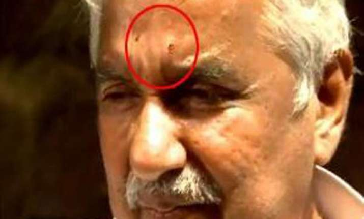 chandy injured in stone pelting cpi m rules out involvement