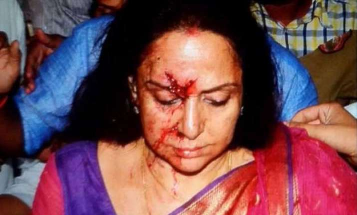 hema malini injured in a car accident near jaipur 5 yr old