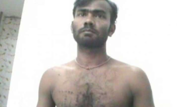 bjp worker burned with cigarette butts for attending amit