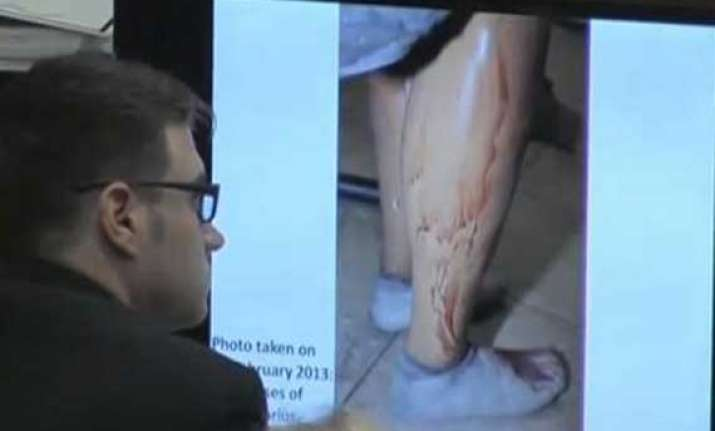 pistorius photographed in bloodied prosthetics