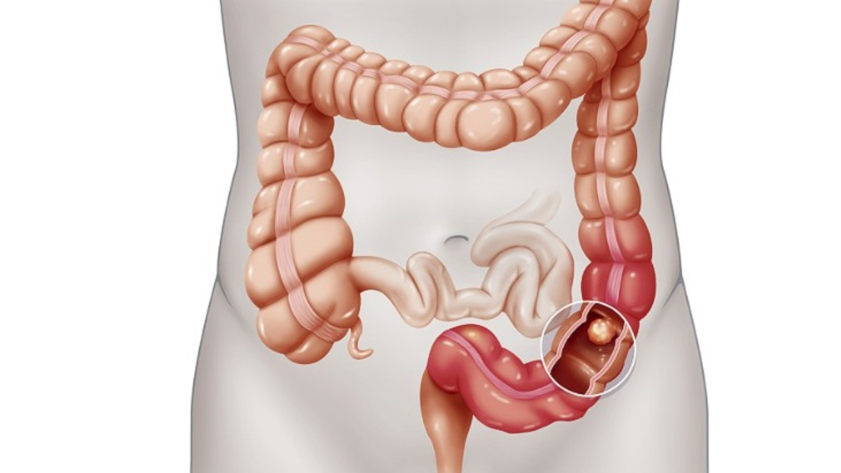 High Fat Diet May Increase Colon Cancer Risk Health News India Tv