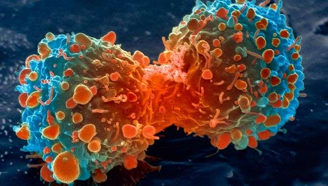 'Cancerous tumours can be treated in just two hours with