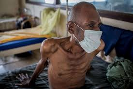 India may have up to three times more TB patients than