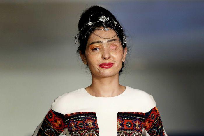 Acid attack victim Reshma Qureshi walks ramp in New York