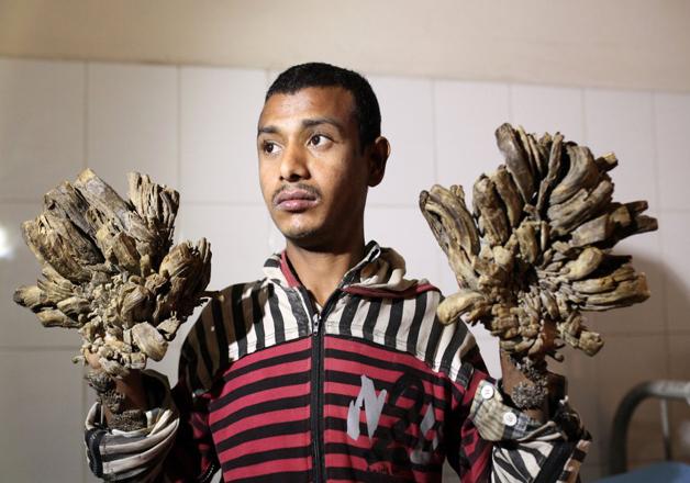Bangladesh Tree man- India Tv