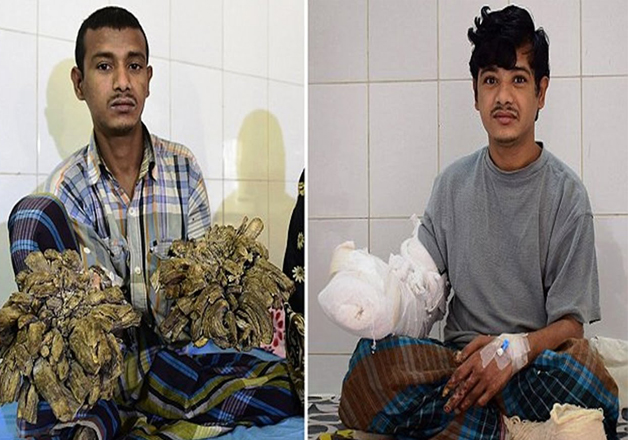 India Tv - Bangladesh Tree man