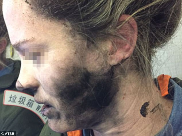 Female passenger suffers severe injuries after headphones