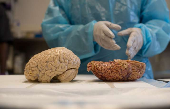 India Tv - World Health Day: You can touch the real 'brain samples' in a unique exhibition