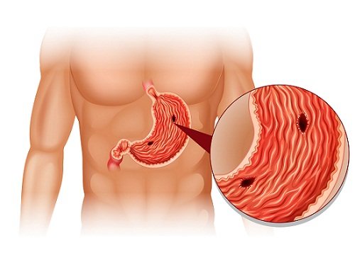India Tv - stomach cancer
