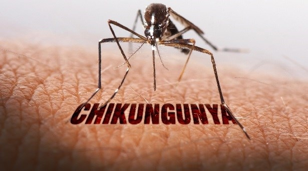 India Tv - Chikungunya and other viral diseases can be treated by homeopathy