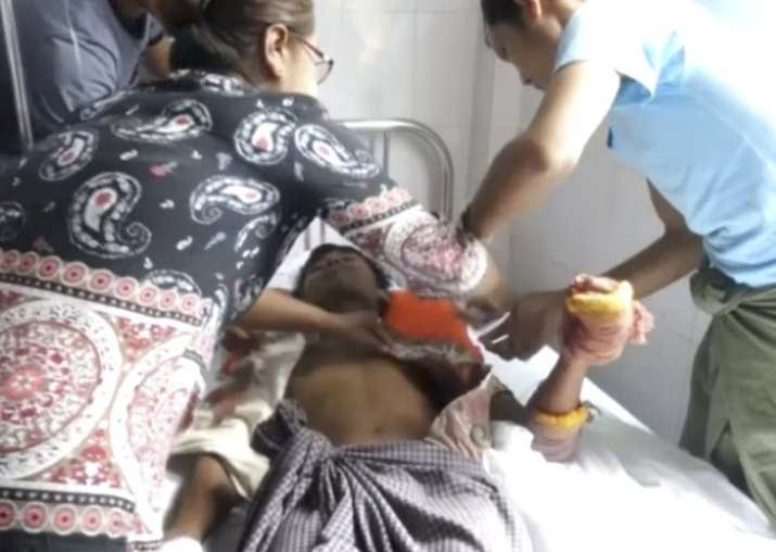 A man lying on a bed in a hospital in Buthidaung township,