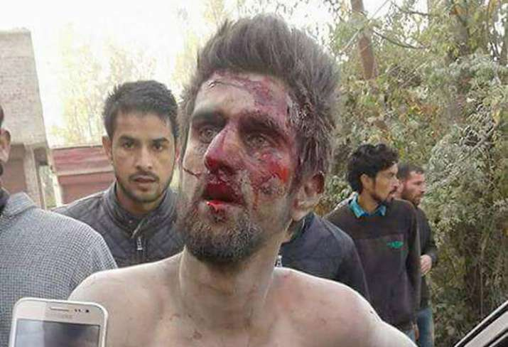 A 'mentally challenged' was rescued by police in Sopore