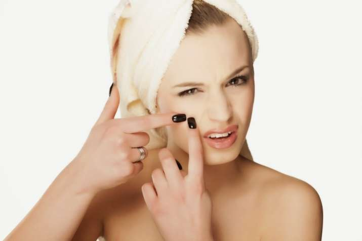 Do You Face Frequent Acne Problem Here S Are Easy Tricks To Keep Them At Bay Health News India Tv