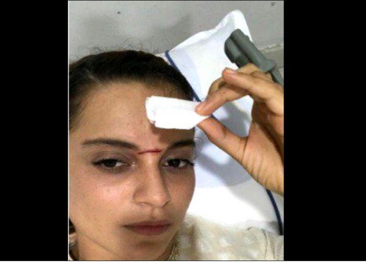 India Tv - Kangana Ranaut head injury
