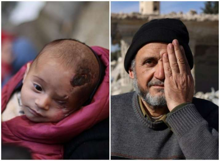 Left- Baby Karim, Right- A man covering his left eye in