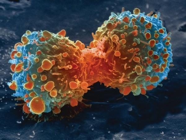 Colon cancer (A representational image)