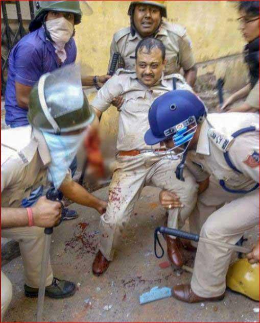 India Tv - An injured police officer in Raniganj