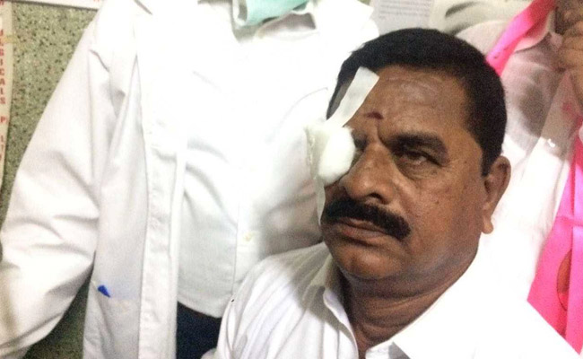 Telangana Assembly witnesses ugly brawl, Legislative