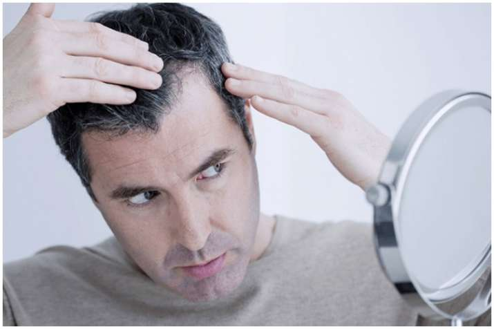 Is sudden weight loss the reason behind hair loss?