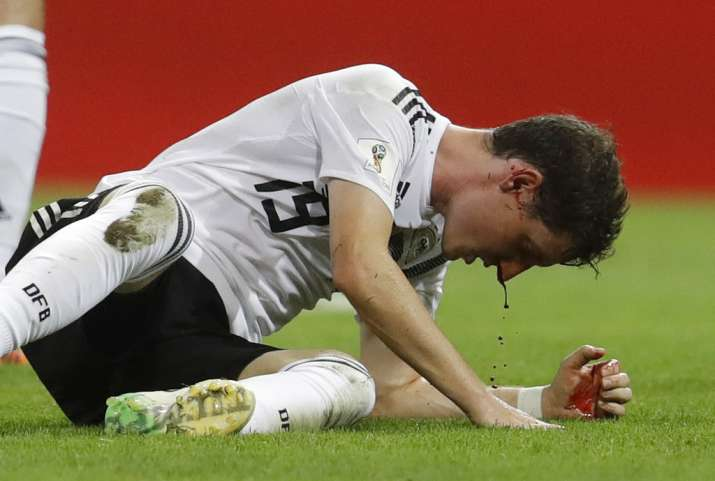 India Tv - Sebastian Rudy was involved in a collision which wasn't a pretty site