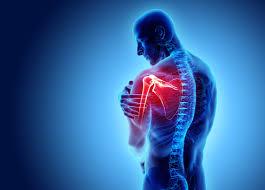 Suffering from shoulder instability? Try arthroscopy