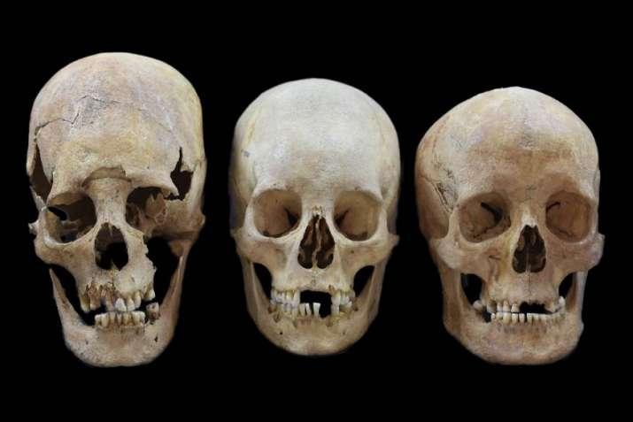 Basque skull shape