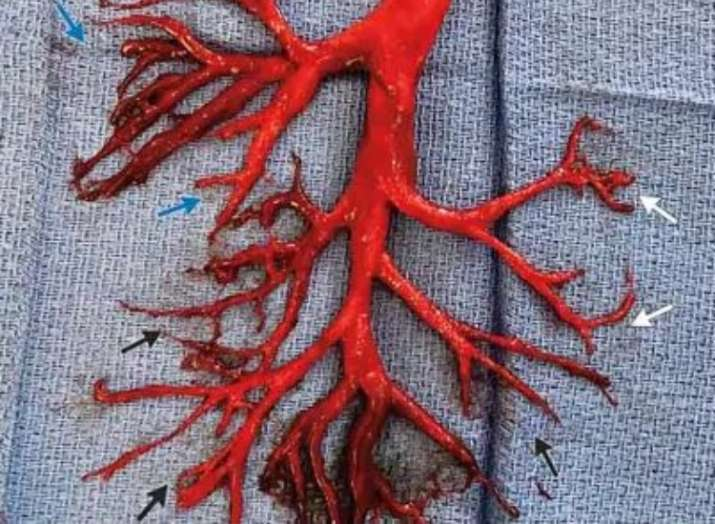 India Tv - Man coughs out 6-inch big blood clot formed in exact shape of a lung passage