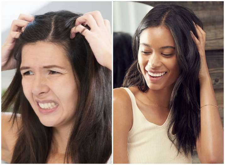 Beauty Tips & Tricks | 6 easy and effective hair care solutions for itchy, dry scalp