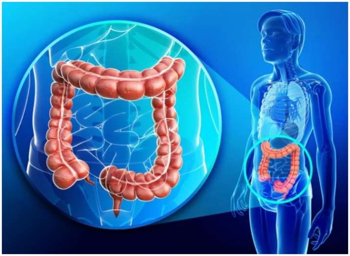 Colorectal cancer definition, signs and symptoms; Know how to reduce the risk of such cancer