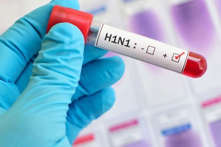 Swine Flu: Here's to know everything about H1n1 infection; Definition, symptoms and signs