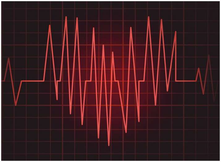 Health update: New ECG method uses signals from ear to check heart rhythm