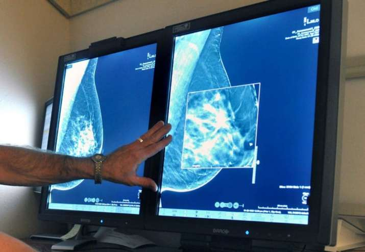 New artificial intelligence model can predict future risk of breast cancer  | Science News – India TV