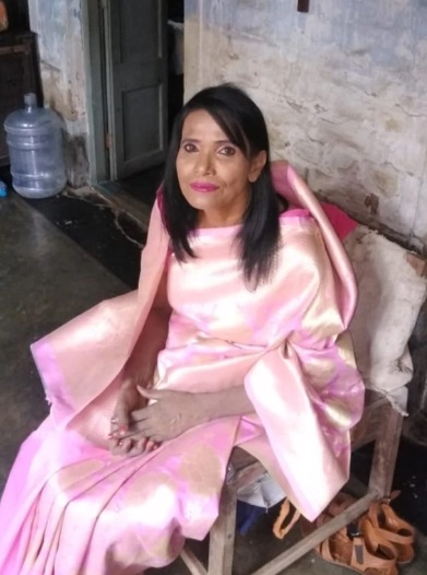 India Tv - Ranu Mondal transformation pictures
