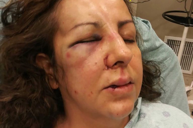 Mother beaten, left with broken nose by teenage girls after she intervenes in bullying