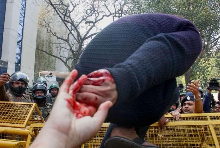 India Tv - 'Azadi chahiye, yeh loh azadi', he said before firing bullets: Jamia eyewitness narrates