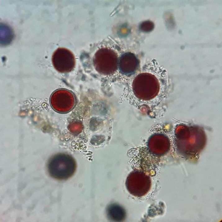 India Tv - Red-pigmented, microscopic algae called Chlamydomonas nivalis