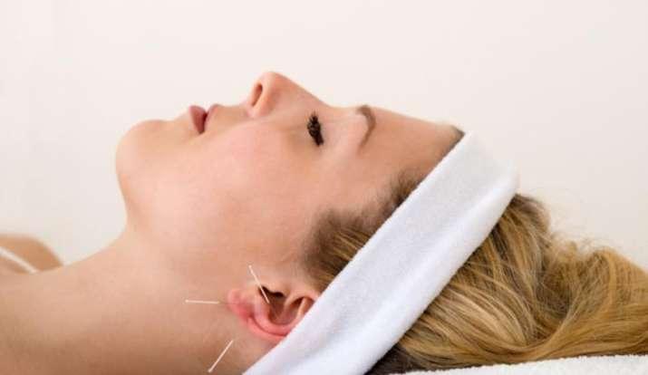 acupuncture, migraine