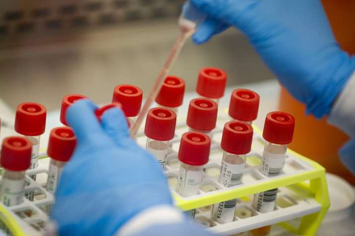 Cardiovascular protective treatments can aid survival, recovery of COVID-19 patients: Study