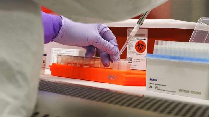 Coronavirus found in semen concerns of sexual transmission China ...