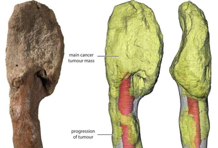 India Tv - Cancer on a dinosaur fossil.