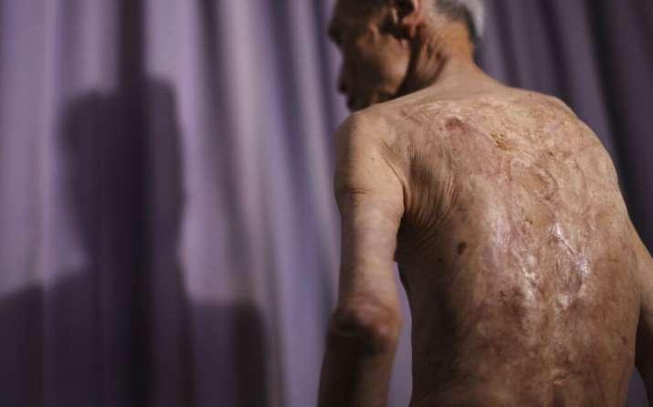 India Tv - In this June 30, 2015, file photo, Sumiteru Taniguchi, a survivor of the 1945 atomic bombing of Naga