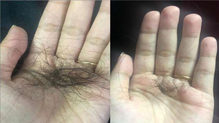 Hairfall due to COVID stress? Try these 5 home remedies to say goodbye to the problem
