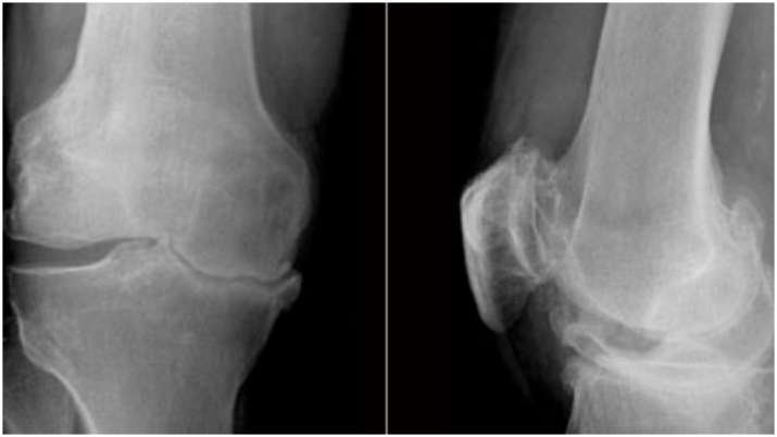 This drug may improve knee osteoarthritis in people: Study