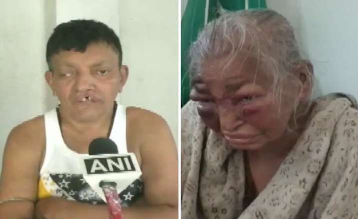 West Bengal: BJP worker's mother, who was allegedly