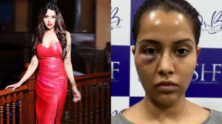 Tamil actress Raiza Wilson's face surgery goes wrong…