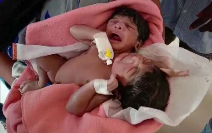 Odisha: Conjoined twins born in Kendrapara with two heads, three arms