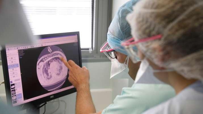 UK, covid study, long term lung damage, COVID-19, coronavirus pandemic, covid updates news, corona s
