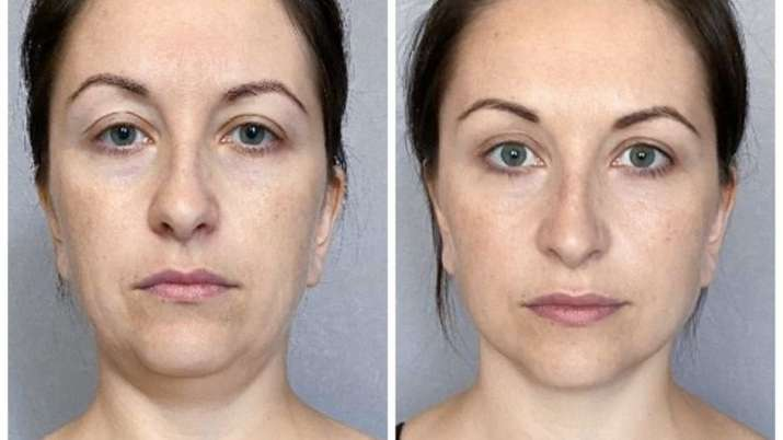 Bid goodbye to facial fat with these simple facial exercises
