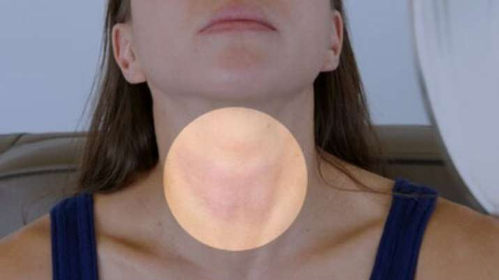 4 reasons women should be aware of thyroid disorders